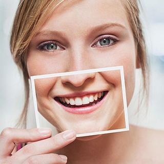 Resultado de imagem para Em busca do sorriso perfeito