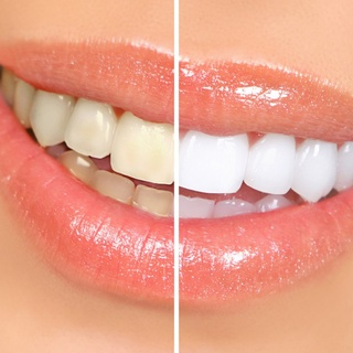 Tooth whitening devitalized