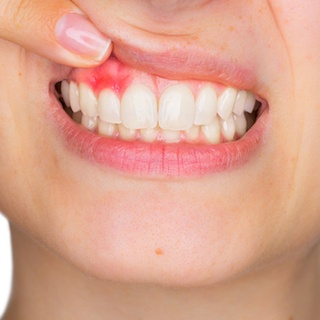 Gingival inflammation can cause orthodontic problems