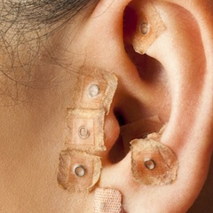 Acupuncture and dental treatment