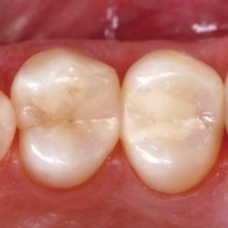 Direct composite restorations longevity