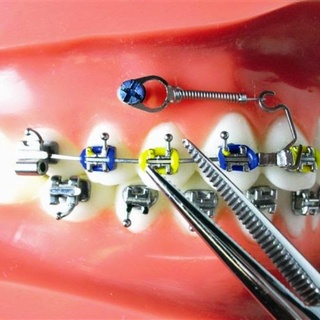 Protocol for selection of mini-implants for maxilla