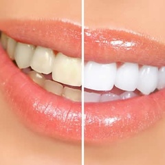 What is the risk of homemade recipes for teeth whitening?