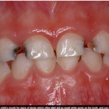 Os perigos do açúcar para saúde bucal infantil