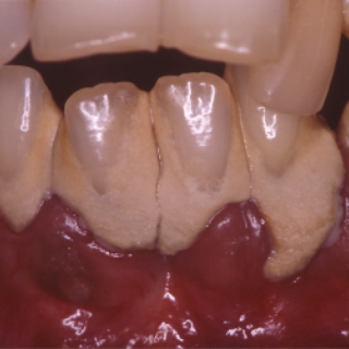 Chronic periodontitis: causes and identification