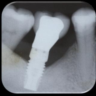 Esto existe en la Osteointegración?