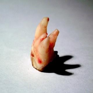 Mostre ao seu paciente: O que acontece quando se perde um dente!